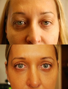 Botox and other injectable fillers before and after