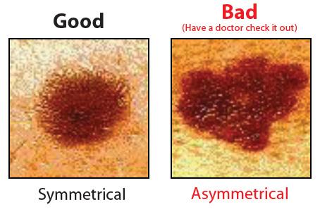 Asymmetrical facial mole cancerous