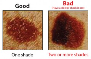 Save Your Life- The ABCDEs of Melanoma Detection