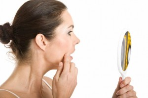 How to Treat Adult Acne