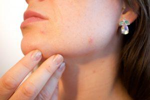 Brazen Loves: Neutrogena Light Therapy Acne Spot Treatment