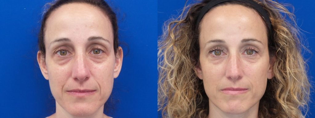 Mara Rubinoff Shapiro nBefore and After juvederm