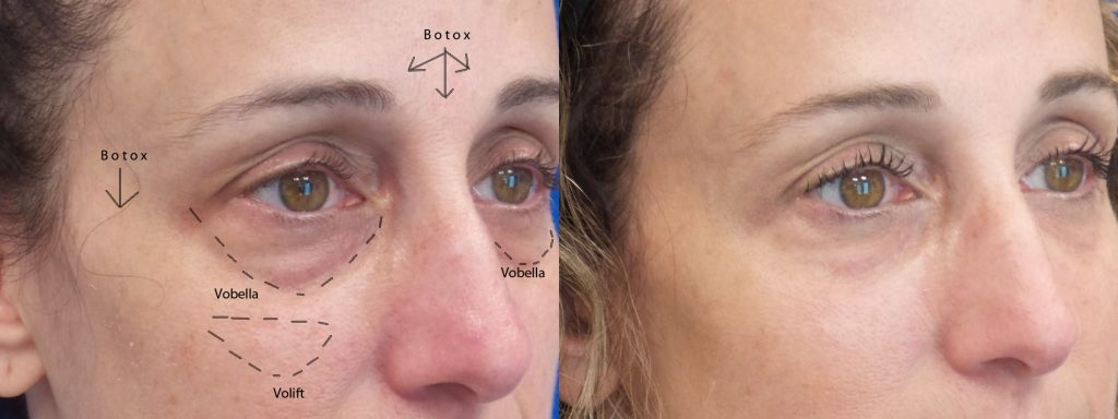 Mara Shapiro Before and After juvederm